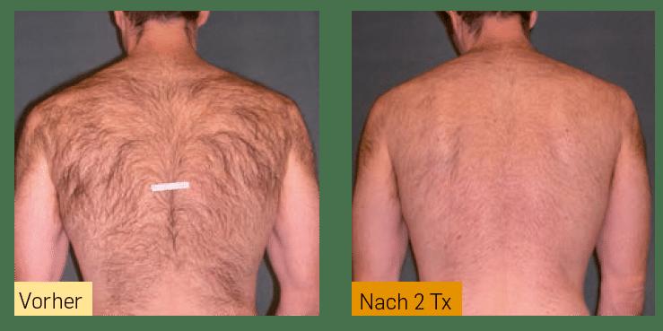 Haarreduktion nach Behandlung mit Skintel