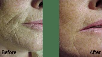 Kimgolden Hautverjüngerung