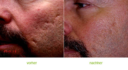 Kimgolden Narbenbehandlung