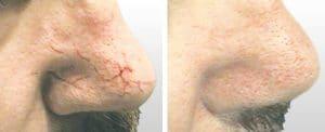 Onetec Couperose Behandlung
